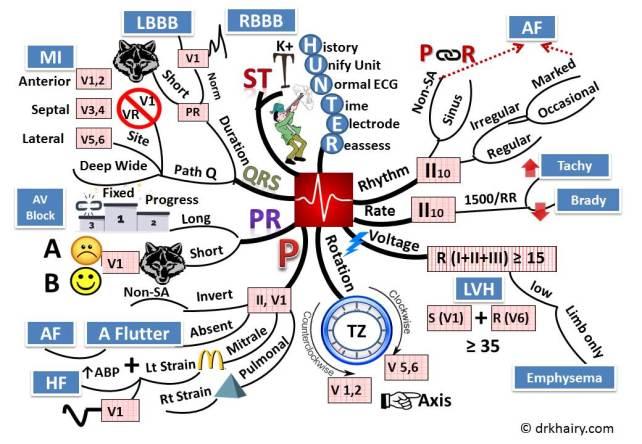 ECG mindmap